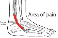 Do you think you have Peroneal Tendonitis? The two peroneal tendons(A tendon is a band if tissue that connects muscles to bone) in the foot run side-by-side behind the outer ankle bone. One peronea. Ankle Pain, Heel Pain, Foot Pain, Tendinitis, Peroneal Tendonitis Exercises, Pilates, Ankle Exercises, K Tape, Running Injuries