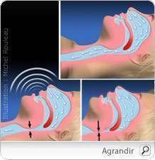L'apnée du sommeil se manifeste par des arrêts involontaires de la respiration, les « apnées », se produisant durant le sommeil. L'apnée du sommeil survient en général chez les personnes en surpoids, âgées ou qui ronflent de façon importante. Ces pauses respiratoires durent par définition plus de 10 secondes (et peuvent atteindre plus de 30 secondes). Elles se produisent plusieurs fois par nuit, à une fréquence variable.