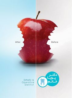#esthetic #operative #dentist # ceramiccrown #porcelain #copmposite #laminate #estheticdentist #operativedentist #beforeafter #before #after #creative #advertisment #advertising #graphic #graphicdesign #design #archivesgraphic #designers #elahehfamouri #neginzeighami #parisajafari #sararavanshid