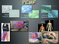PEMF Therapy Buyers Guide - Don't Buy a PEMF Device or Machine Until You Read This.