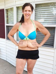 This woman's story of losing 172 pounds (and the aftermath) says a LOT about our society. Worth a read.