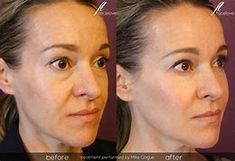 Restylane helps treat and correct dark circles as well as hollows under the eye. The end result is youthful volume and smoothness to the skin around the eyes. Before and After by . Cheek Fillers, Dermal Fillers, Skin Care Regimen, Skin Care Tips, Botox Before And After, Best Lip Gloss, Prevent Ingrown Hairs, Trends, Skin Firming