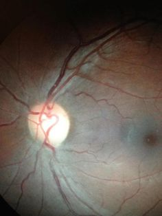 Human retina with a heart-shaped blood vessel over the optic disc