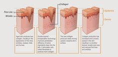 """Visit our web site for even more details on """"skin treatments for dark spots"""". It… – Skin Care Tips What Is Retinol, Best Retinol Cream, Wrinkled Skin, Sensitive Skin Care, How To Get Rid Of Acne, Face Serum, Skin Cream, Skin Treatments, Anti Aging Skin Care"""