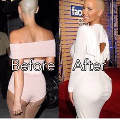 Amber Rose Butt Implants Before And After Plastic Surgery Kanye West, Nigerian Girls, Plastic Surgery Photos, Celebrities Before And After, Celebrity Plastic Surgery, Photoshop, Rapper, Celebs, Beauty