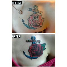 Covering tattoo