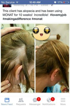 MONAT before & afters  #Alopecia