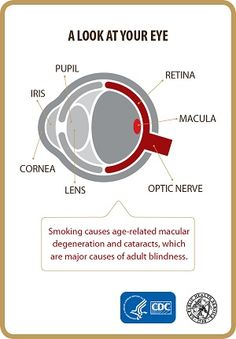Adult Blindness and Smoking
