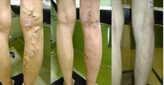 Cura tus varices con zanahoria, aloe vera y vinagre de manzana Cure your varicose veins with carrot, aloe vera and apple cider vinegar Health Remedies, Home Remedies, Natural Remedies, Varicose Vein Remedy, Varicose Veins Causes, Natural Treatments, Natural Medicine, Natural Healing, Healthy Tips