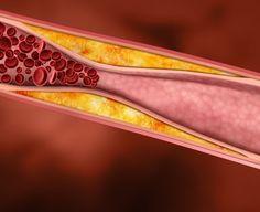 Jugos saludables para reducir el colesterol y los triglicéridos