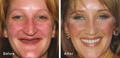 Image result for natural looking dentures pictures