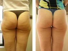 Remove that cellulite!: I don't know how she dit it with this, but…