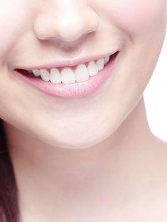 Dieses kleine Wundermittel macht deine Zähne in Minuten weißer, wenn du weißt, wie es geht.Dass Kurkuma und Kokosöl zwei kleine