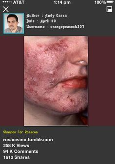 Shampoo For Rosacea 042208 - Rosacea Free Forever.