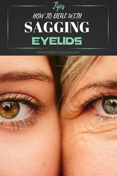 Tips How To Deal With Sagging Eyelids #eyelids #sagging #saggingeyelids