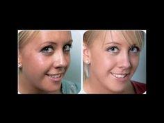 Cebolla para eliminar manchas de la cara (cebolla elimina las mancas de ...