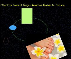 Effective toenail fungus remedies review in fontana - Nail Fungus Remedy. You have nothing to lose! Visit Site Now