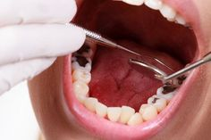 Dental crowns are a secure way to fill gaps and help restore your smile. Emergency Dentist Houston provides tooth filling and dental crown installation services by qualified dentist in Houston. Book an appointment today! Dental Implant Surgery, Teeth Implants, Dental Care For Kids, Amalgam Fillings, Tooth Extraction Healing, Dental Fillings, Emergency Dentist, Dental Crowns, Dental Problems