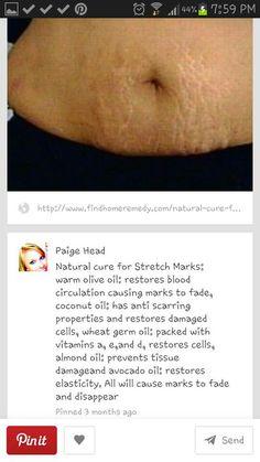Strech marks anyone?!?!?