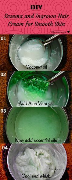 DIY ingrown hair cream not only treats hateful ingrown hair bumps but also helps in getting rid of pimples and blemishes as it contains nature's blessing.