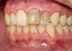 55 Best Dental Problems images in 2013 | Dental problems