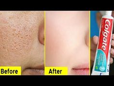 Skin Whitening Colgate Home Toothpaste Treatments Lifestyle Tips How To Remove Pimples, Remove Acne, How To Get Rid Of Acne, Acne Lotion, Natural Teeth Whitening, Skin Whitening, Pimple Marks, Colgate Toothpaste, Pimples On Face