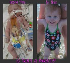 This is Madelyn born Aug 6 2009 with HLHS (hypoplastic left heart syndrome) and TAPVR (total anomalous pulmonary venous return). We were told she would need a 3 stage operation to help her half a heart she was born with to function. She had her first open heart surgery at 7 days old where a Norwood-Sano shunt was put in to help the blood flow through her body and back to her heart.  She had several complications from this surgery including kidney failure and her blood pressure dropped so low…