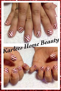 Acrylic overlay with @Chad Prevost Color nail to toe stripers with white/metallic white base to make a candy cane pattern