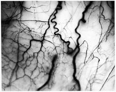 Harold Edgerton, Detail of Veins in the Human Eyeball, 1962.