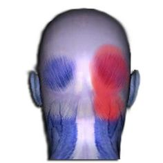 What symptoms and pain are associated with the semispinalis cervicis muscle? Pain in the back of the upper neck extending up into the back of the head. Headaches. Tenderness in the back of the head and/or neck. Tingling and burning in the scalp.