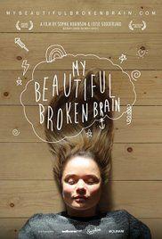 meine schöne gebrochen Gehirn ist 34 Jahre alt Lotje Sodderland persönliche Reise in die Komplexität, Zerbrechlichkeit und Wunder von ihr eigenes G... #meineschönegebrochenGehirn(2014) #Filme #Filme #Filmeonline #kostenlosFilmeonline