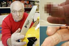 This Man Re-Grew His Finger Using Pixie Dust and It Is Only The Beginning #news #alternativenews