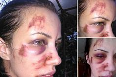 Clipe de coşmar pentru o femeie din Tulcea: Am fost bătută fostul concubin, iar Poliţia nu face nimic! Replica oamenilor legii: Pentru două palme ne-ai sunat? - ActiveNews