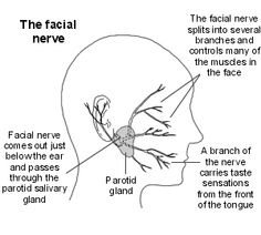 Bell's Palsy - going to physical therapy