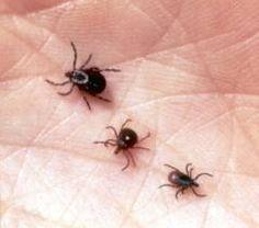 DIY Remove ticks the easy way: http://myhoneysplace.com/diy-easy-way-to-remove-ticks/#