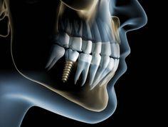 It is important to take care of your dental health. Dental health may affect overall health. There are many dental treatments nowadays to replace missing tooth. get affordable dental treatment from The dental roots. Dental Implant Surgery, Teeth Implants, Nose Surgery, Affordable Dental, Dental Cosmetics, Botox Injections, Dental Art, Dental Procedures