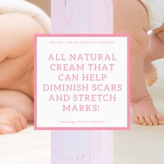 Stretch Mark is a non-greasy moisturizing body cream with a powerful combo of nourishing botanicals to rejuvenate and hydrate your skin. It helps to restore skin's youthful appearance, improve firmness, and enhance skin elasticity while balancing skin tone with  nourishing botanicals.  ~Enhances skin elasticity and firmness ~Balances skin tone with nourishing botanicals ~Rejuvenates and hydrates in a non-greasy formula ~Restores your skin's youthful appearance Stretch Mark Cream, Stretch Marks, Baby Boys, Looking For Friends, Mama Blogger, Der Arm, Baby Center, Skin Elasticity, Your Skin