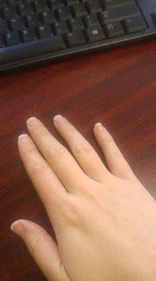 Last year I started taking collagen once a day in my coffee and saw lots of new hair growth and stronger and longer nails. Over this past summer I ran out and didn't replenish right away. Figured I could go without for awhile. Well, I started getting terrible hang nails again, that I totally forgot I used to get ALL THE TIME! ...Sandra F. Integral Collagen - www.trimhealthymama.com