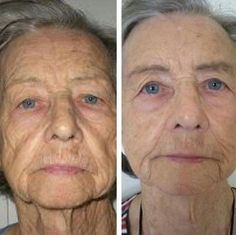 Do Facial Training Exercises Truly Work For A Non-Invasive Facelift?