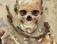 """Des """"vampires"""" déterrés en Pologne, dans le cimetière de Drawsko."""