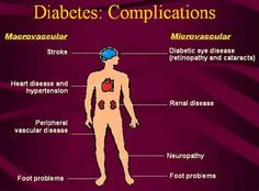 diabetes - Yahoo Search Results Yahoo Image Search Results