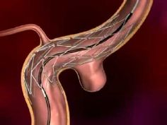 ▶ Endovascular Embolization or Coiling - YouTube