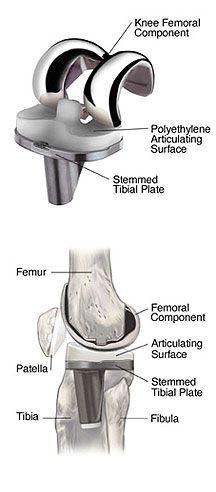 Knee Replacement. Visítenos en la Clínica de Artrosis y Osteoporosis www.clinicaartrosis.com PBX: 6836020, Teléfono Movil: 317-5905407 en Bogotá - Colombia.