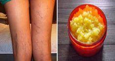 Un articol de Ileana Mladinoiu Cine nu-si doreste sa scape de varice, aceste vene proeminente vizibile pe surpafata picioarelor cand suferim de proasta circulatie a sangelui sau insuficienta venoasa? Inestetice si dureroase, varicele pot fi, din nefericire, o mostenire genetica sau cauzate de stilul de viata sedentar si de o alimentatie proasta.Multe femei au recurs … Peach, Fruit, Food, Varicose Veins, Essen, Peaches, Meals, Yemek, Eten