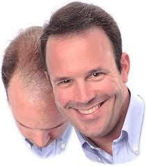 Viviscal hair growth products and how to buy the right Viviscal product for your hair problem - thinning hair, hair loss or damaged hair. visit: http://www.hairgrowthproducts1.com