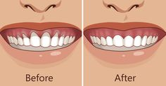 Gum recession is not something you should ignore, and it will not go away on its own.