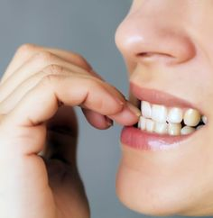 Nail biting, brushing too hard and using your teeth as tools are just a few of the bad habits that can harm your teeth and mouth. Get the top 6 worst habits for your mouth and find out how to break them. Oral Health, Dental Health, Dental Care, News Health, Dental Hygiene, Grow Nails Faster, How To Grow Nails, Natural Remedies For Anxiety, Natural Cures