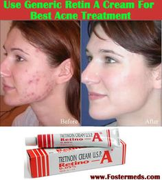 Retin a tretinoin for acne