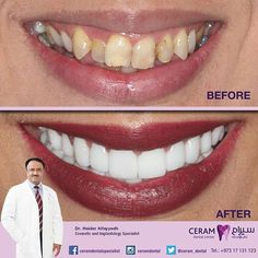 Can you see the remarkable change on her smile?  If you have that new smile, it will surely boost your confidence.  Dr. Haider with his expertise, he didn't let patient undergo Orthodontic treatment. He used only Emax Veneers to achieve the patient's beautiful smile.  She got her smile, it's time to get yours!  يمكنك ان ترى تغيرا ملحوظا و راءعا على ابتسامتها ؟ إذا كان لديك تلك الابتسامة الجديدة ، فسوف تعطيك بالتأكيد كامل الثقة بالنفس .  مع خبرته العالية استطاع الدكتور حيدر الفياض و بدون عمل…