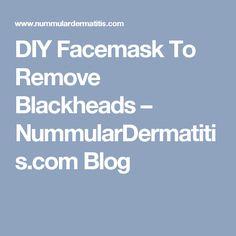 DIY Facemask To Remove Blackheads – NummularDermatitis.com Blog